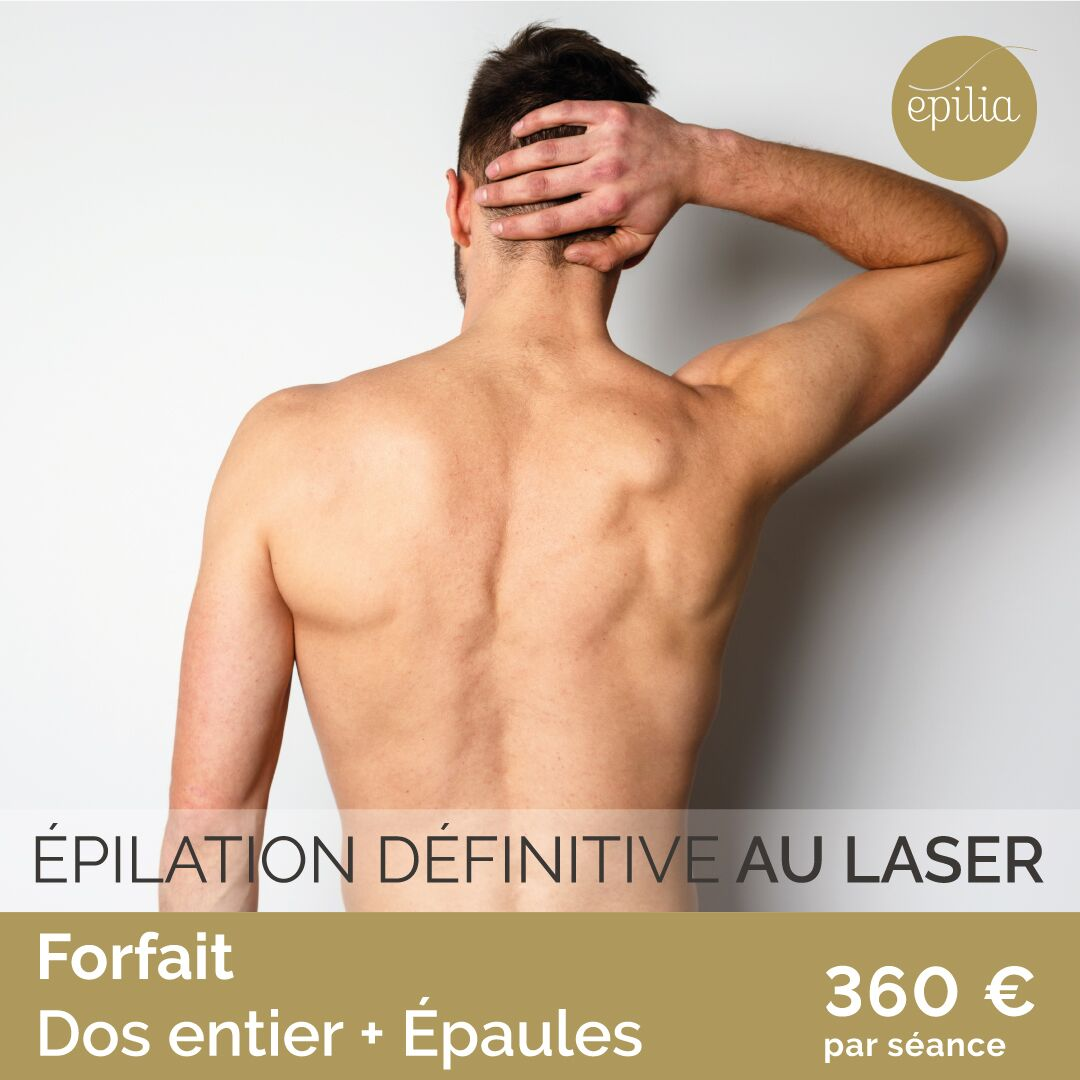 Epilation laser homme luxembourg